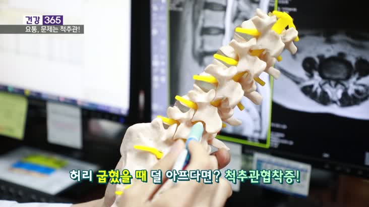 [건강365]-내 허리 통증, 디스크가 아니다?