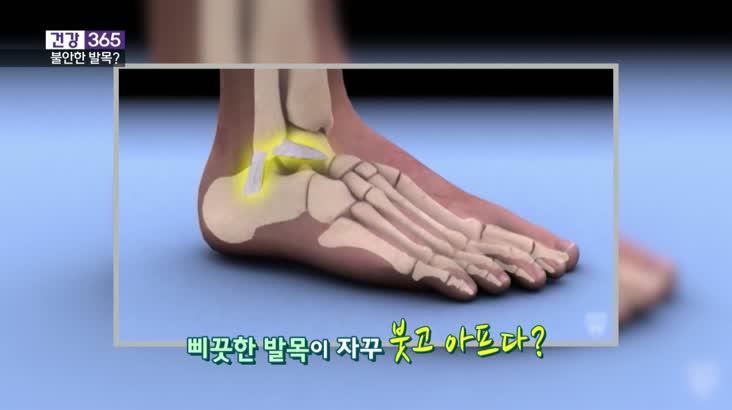 [건강365]불안한 발목, 관절염 부른다?