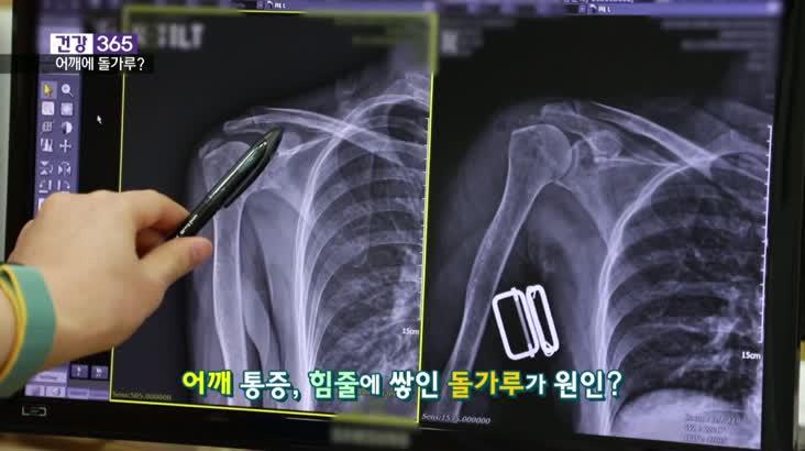 [건강365]어깨에 쌓인 돌가루, 응급실까지?