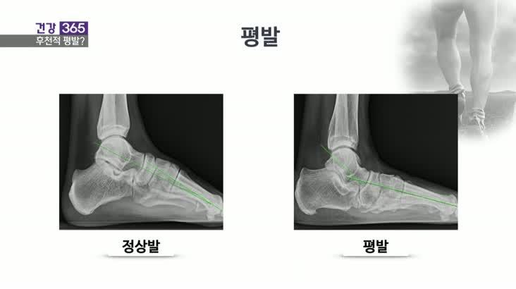 [건강365]-평발, 후천적으로 생긴다?