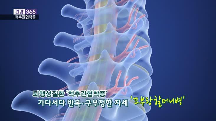 [건강365]백세시대 척추건강의 걸림돌 '척추관협착증