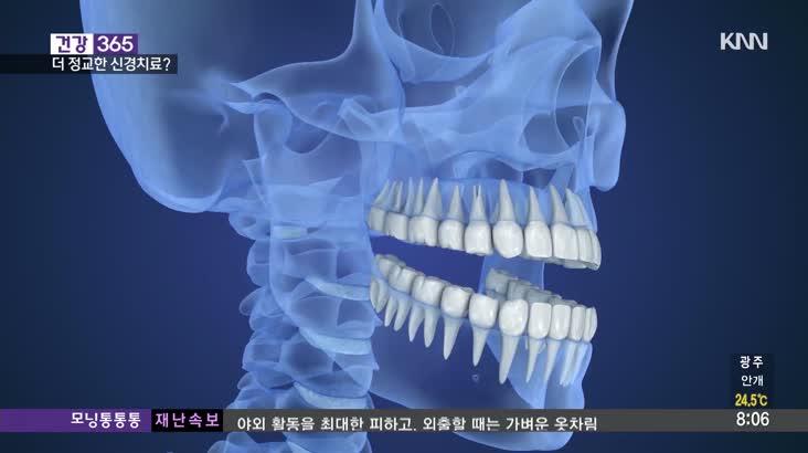 [건강365]-치아신경치료, 덜 아프고 정확하게?
