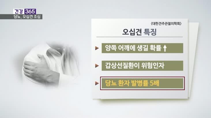 [건강365]-당뇨, 오십견 위험 5배 높여