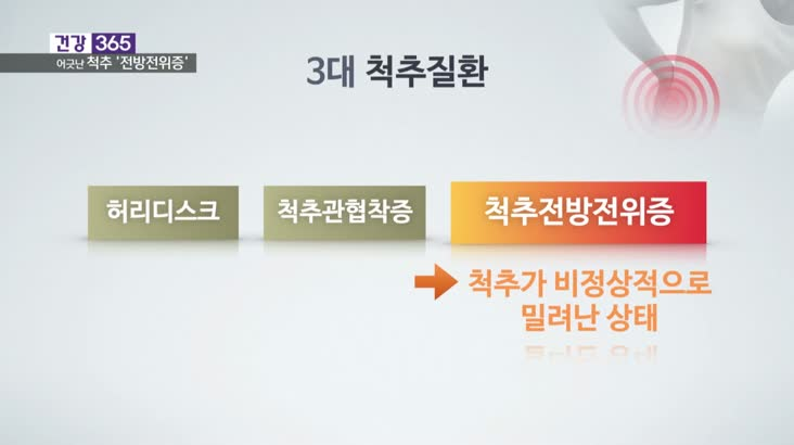[건강365]-허리 펼 때 '악' 어긋난 척추 때문?