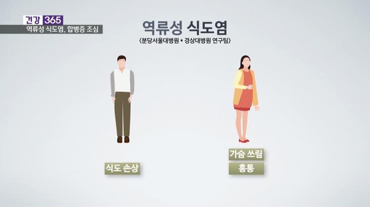 [건강365]-'천의 얼굴' 식도염, 합병증 조심!