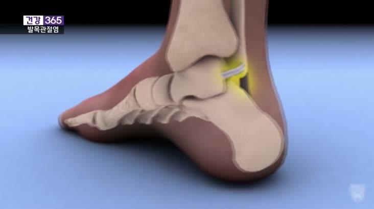 [건강 365]발목에도 관절염? 이럴 때 인공관절수술!