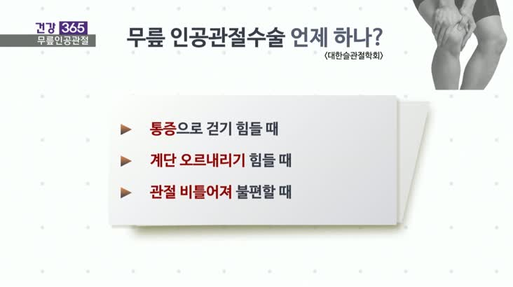 [건강365]-미리 하는 무릎인공관절? 다시 생각하세요!