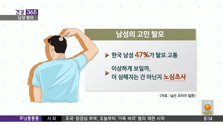 [건강365] 남성의 고민 탈모, 해결책은?