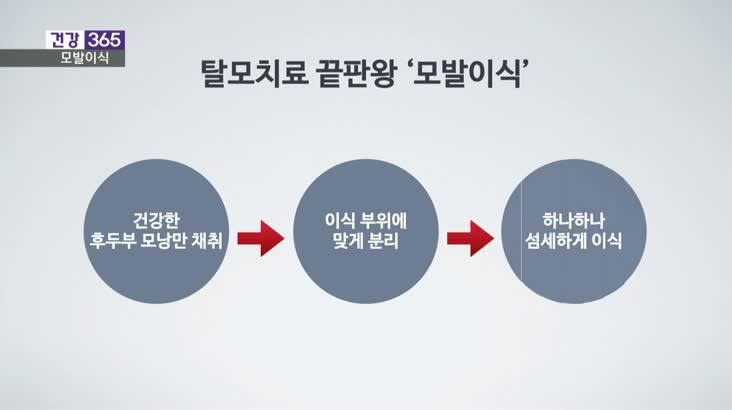 [건강365]탈모 스트레스, 남성 모발이식 성공수칙은?