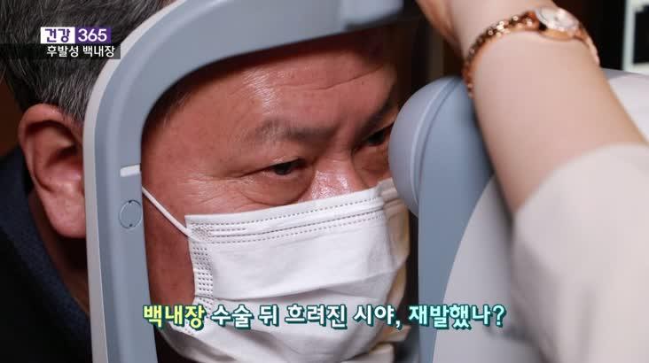[건강365]-백내장 수술 후 뿌옇게 보인다면?