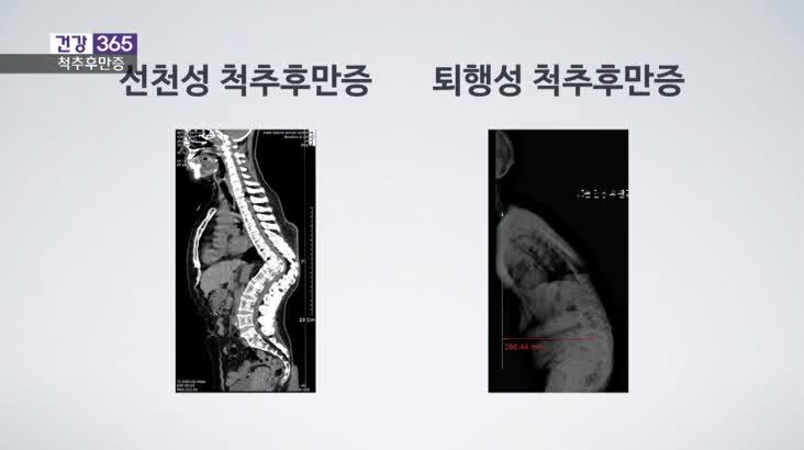 [건강365]-쪼그려 앉는 습관, 척추 앞으로 굽는다