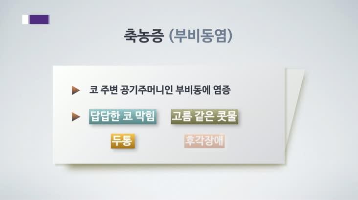 [건강365] 1년 365일 답답한 만성 축농증, 수술도 고려!