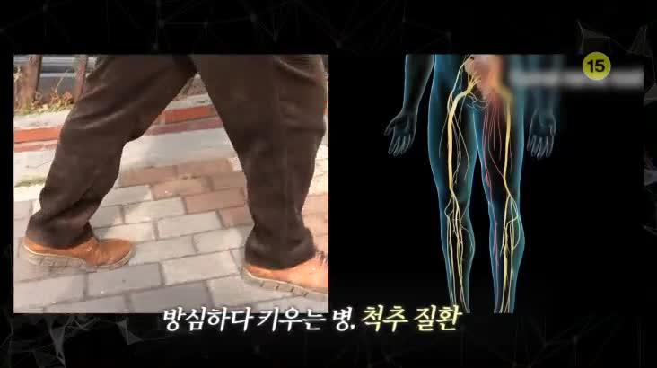 (03/15 방영) 메디컬 24시 닥터스 – 목, 허리 질환의 골든타임을 잡아라