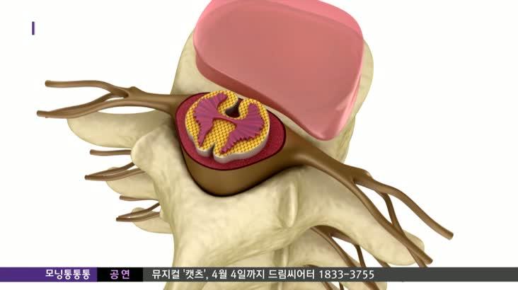[건강365]허리 디스크와 다른 디스크내장증