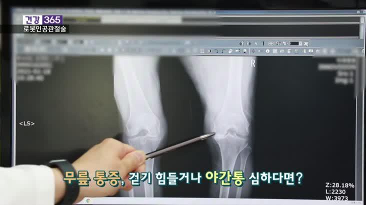 [건강365]-로봇 인공관절술, 뭐가 다를까?