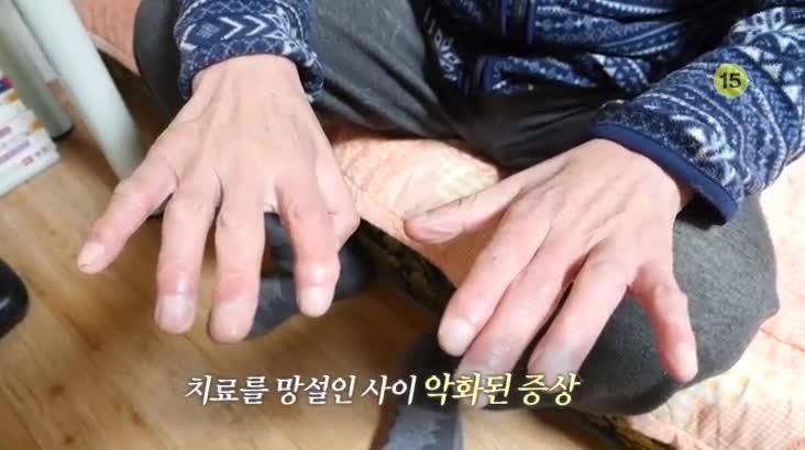 (04/12 방영) 메디컬 24시 닥터스2부 – 마비를 부르는 질병, 척수병증을 아시나요?