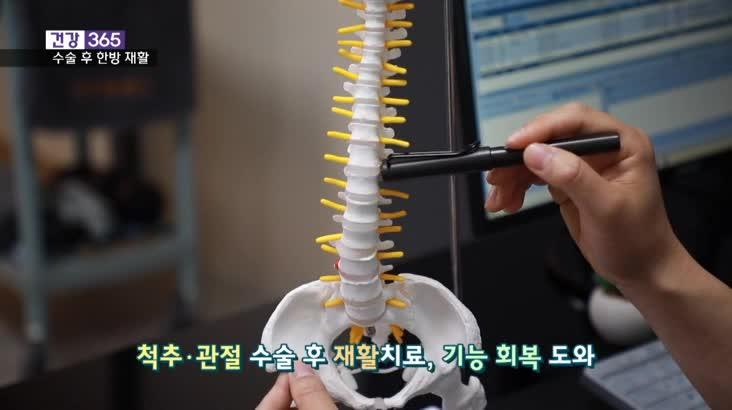 [건강365]-척추관절 수술 후 한방재활!