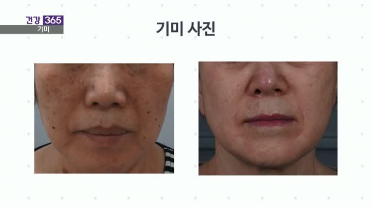 [건강365]여름철 피부고민 기미, 해결법은?