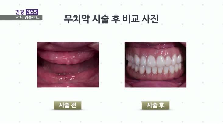 """[건강365]-""""남은 치아가 없어요""""노인 임플란트 방법은?"""