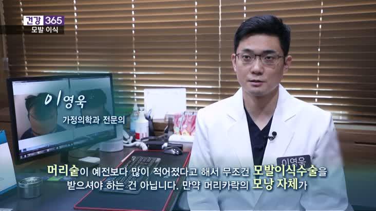 [건강365]-머리숱 줄면 모발이식? 신중해야