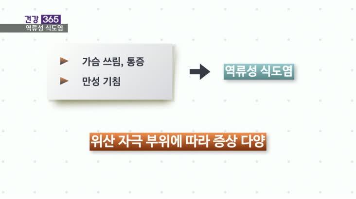 [건강365]-재발 잦은 역류성 식도염, 관리는?