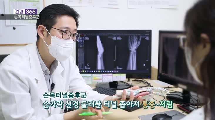 [건강365]-손목터널증후군, 근육통 아닌 신경통!