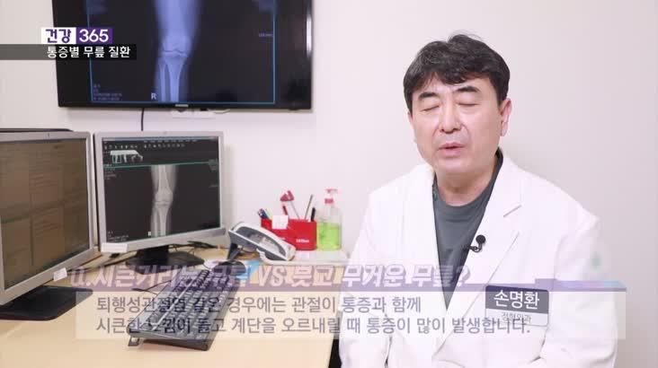 [건강365]-무릎 질환, 통증별로 예측?